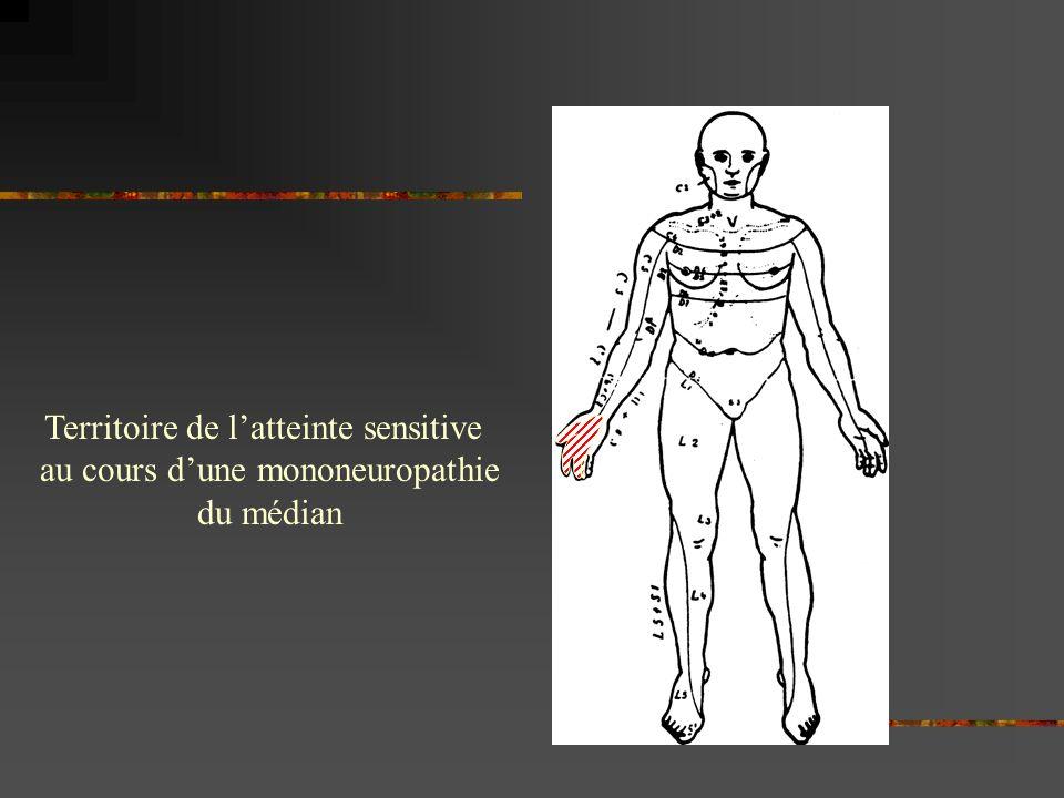 Territoire de l'atteinte sensitive au cours d'une mononeuropathie