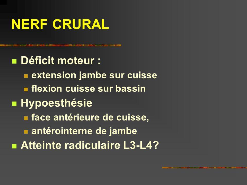 NERF CRURAL Déficit moteur : Hypoesthésie Atteinte radiculaire L3-L4