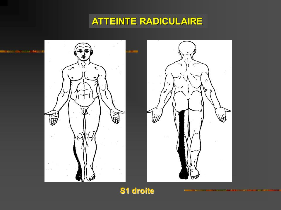 ATTEINTE RADICULAIRE S1 droite