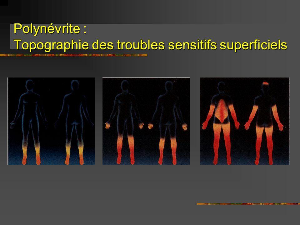 Polynévrite : Topographie des troubles sensitifs superficiels