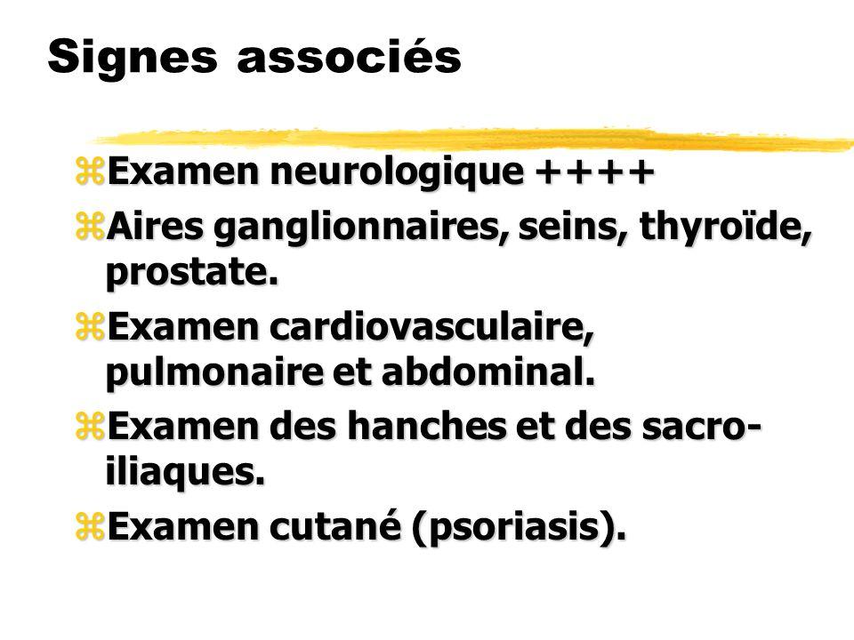 Signes associés Examen neurologique ++++