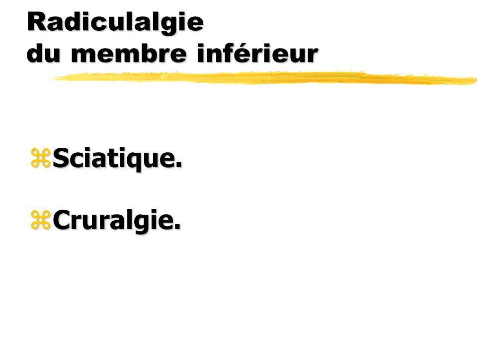Radiculalgie du membre inférieur
