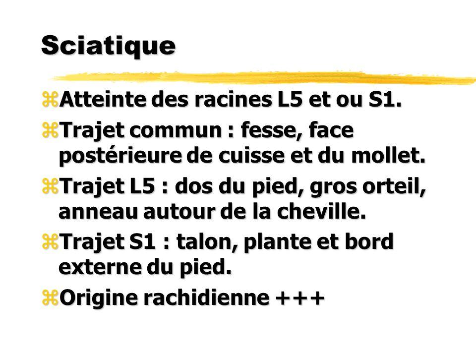 Sciatique Atteinte des racines L5 et ou S1.