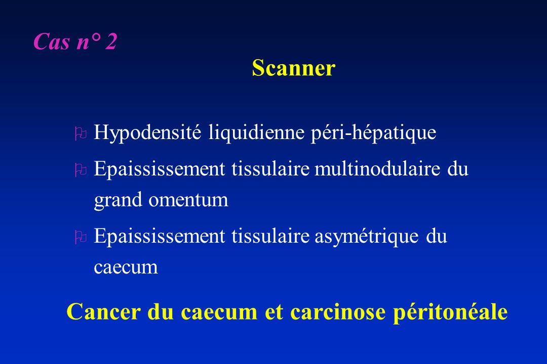 Cancer du caecum et carcinose péritonéale