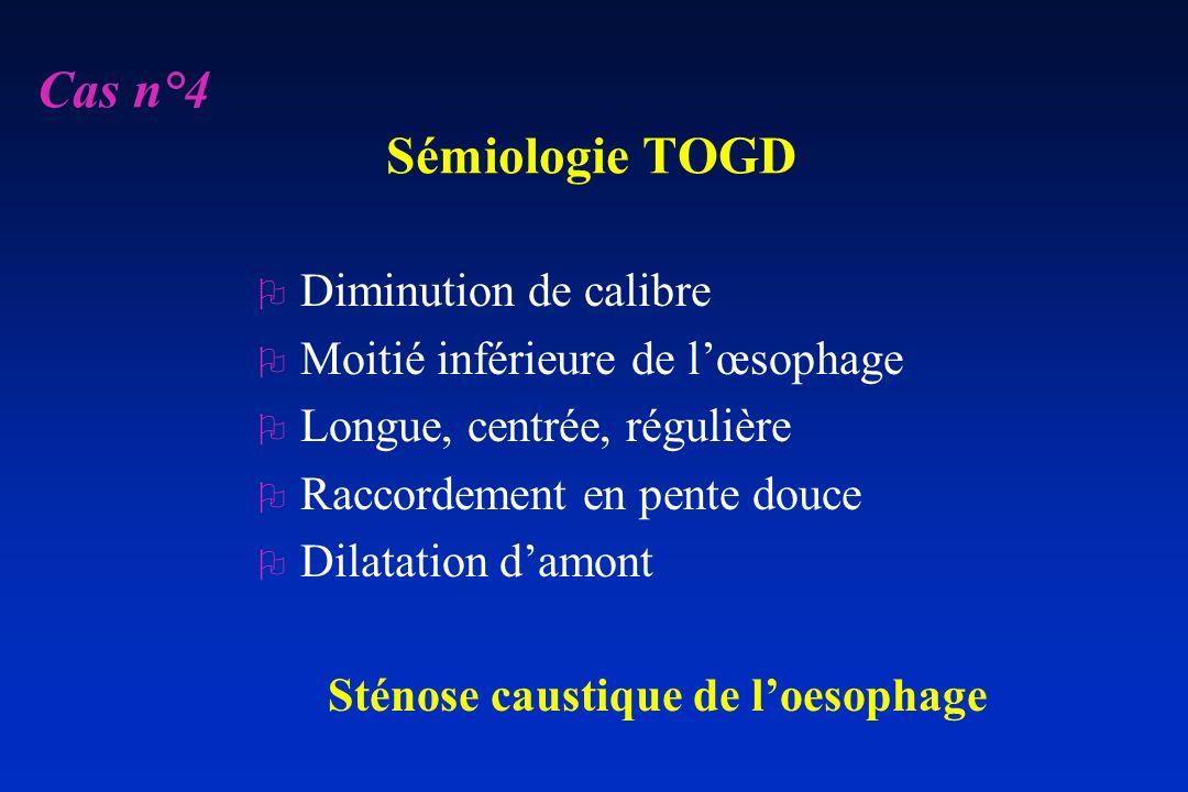 Cas n°4 Sémiologie TOGD Diminution de calibre