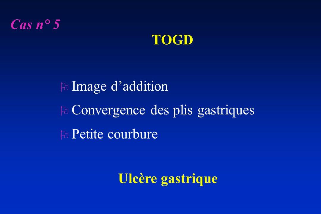 Cas n° 5 TOGD Image d'addition Convergence des plis gastriques Petite courbure Ulcère gastrique