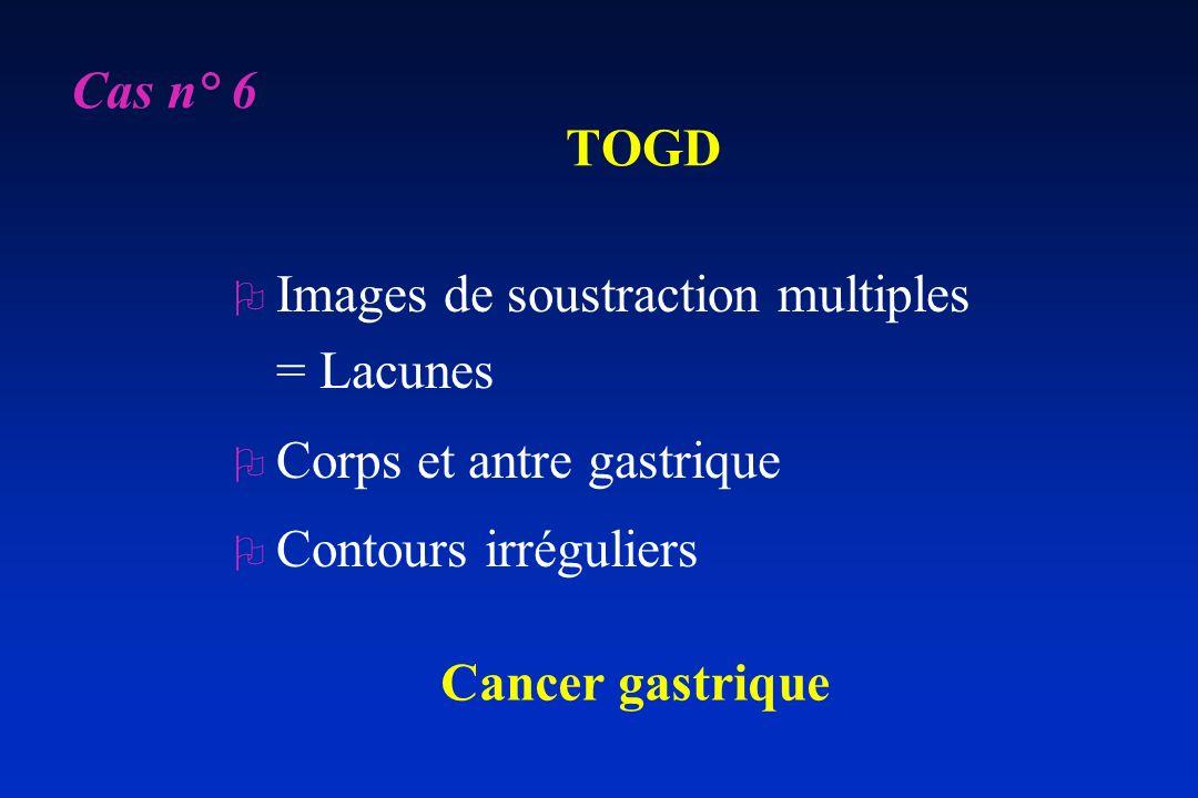 Cas n° 6 TOGD. Images de soustraction multiples = Lacunes. Corps et antre gastrique. Contours irréguliers.