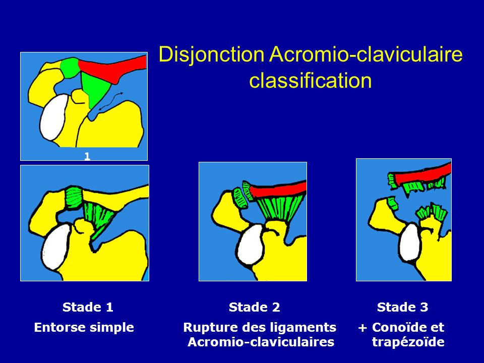 Disjonction Acromio-claviculaire classification