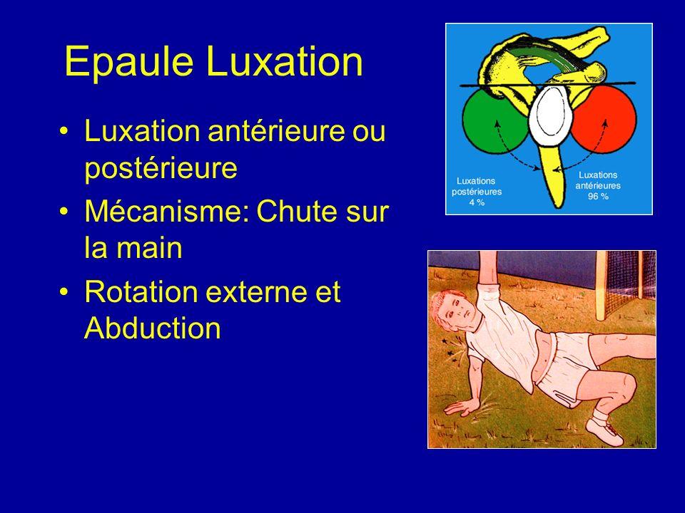 Epaule Luxation Luxation antérieure ou postérieure
