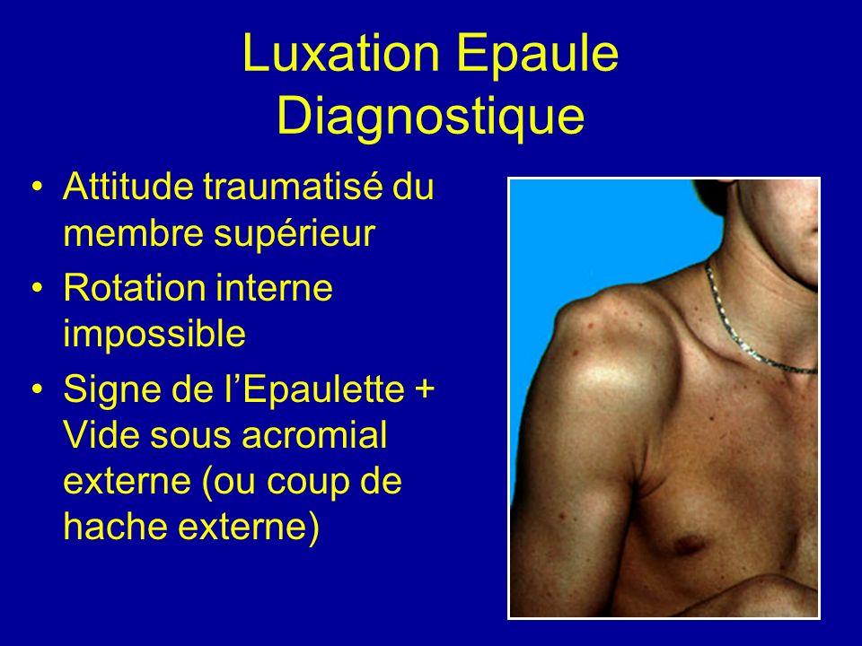 Luxation Epaule Diagnostique