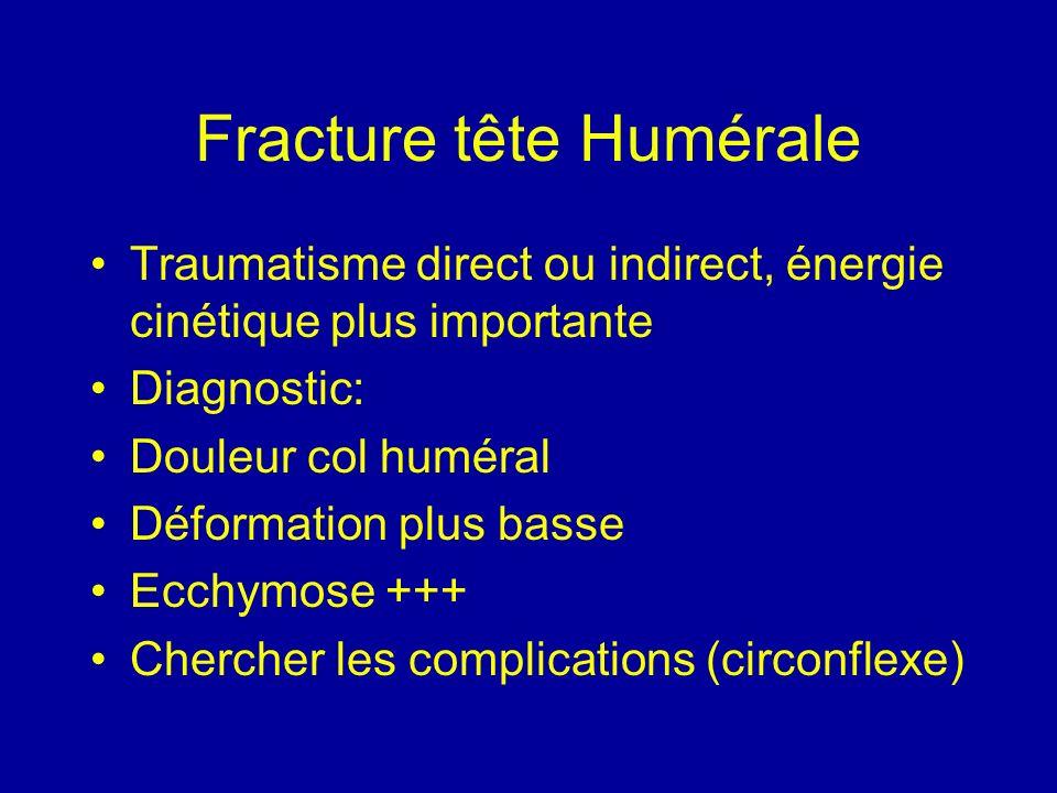 Fracture tête Humérale