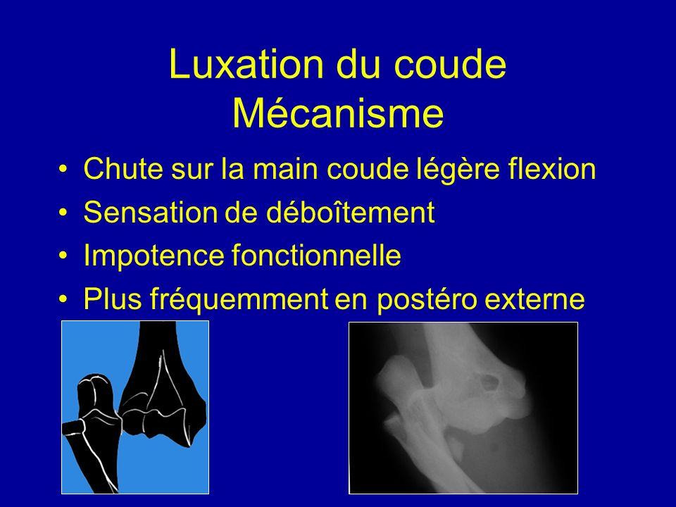 Luxation du coude Mécanisme