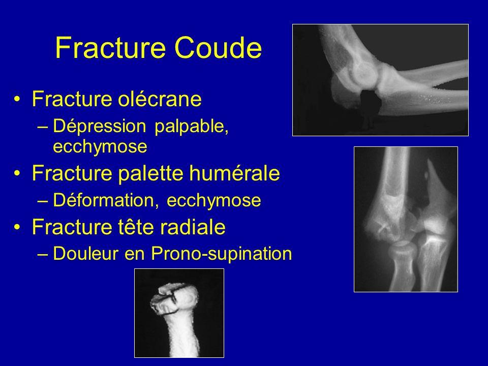 Fracture Coude Fracture olécrane Fracture palette humérale