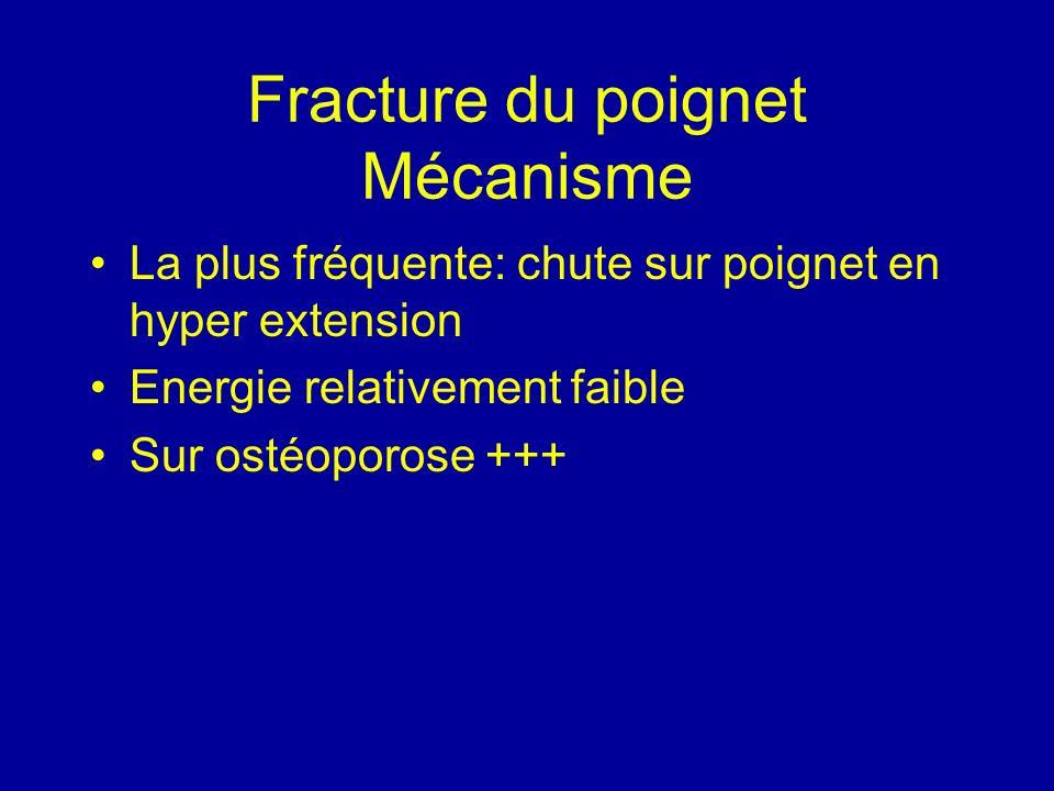 Fracture du poignet Mécanisme