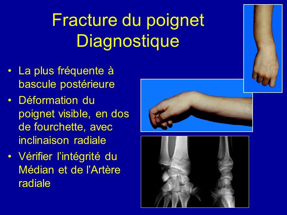 Fracture du poignet Diagnostique