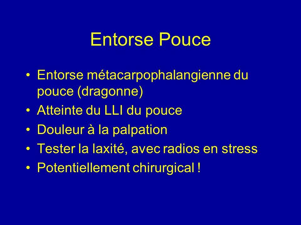 Entorse Pouce Entorse métacarpophalangienne du pouce (dragonne)
