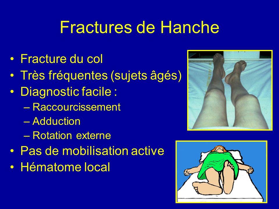 Fractures de Hanche Fracture du col Très fréquentes (sujets âgés)