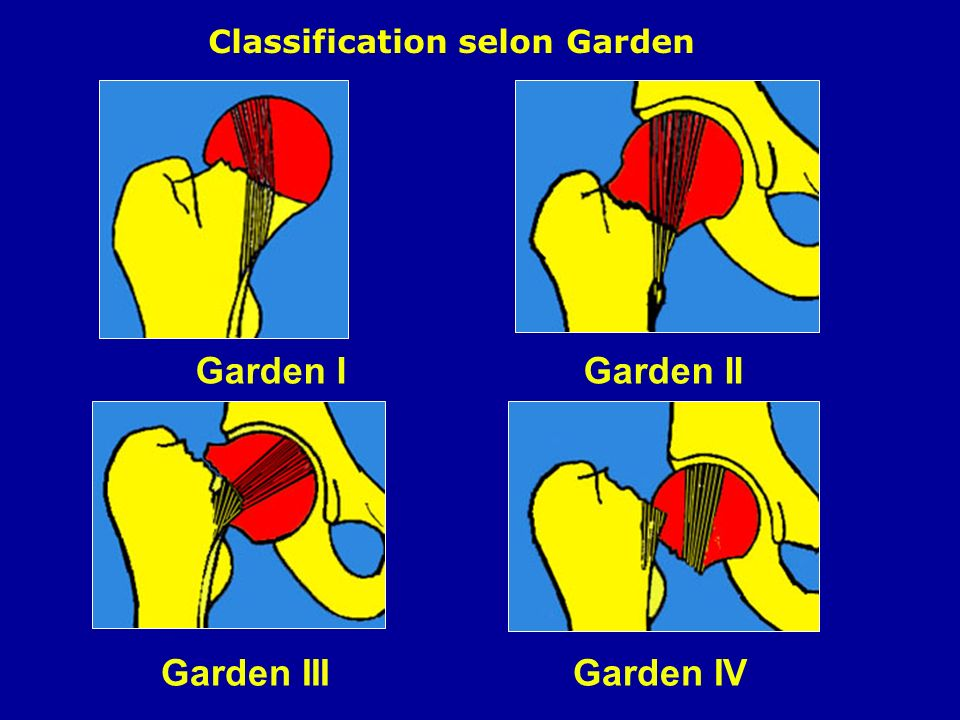 Classification selon Garden