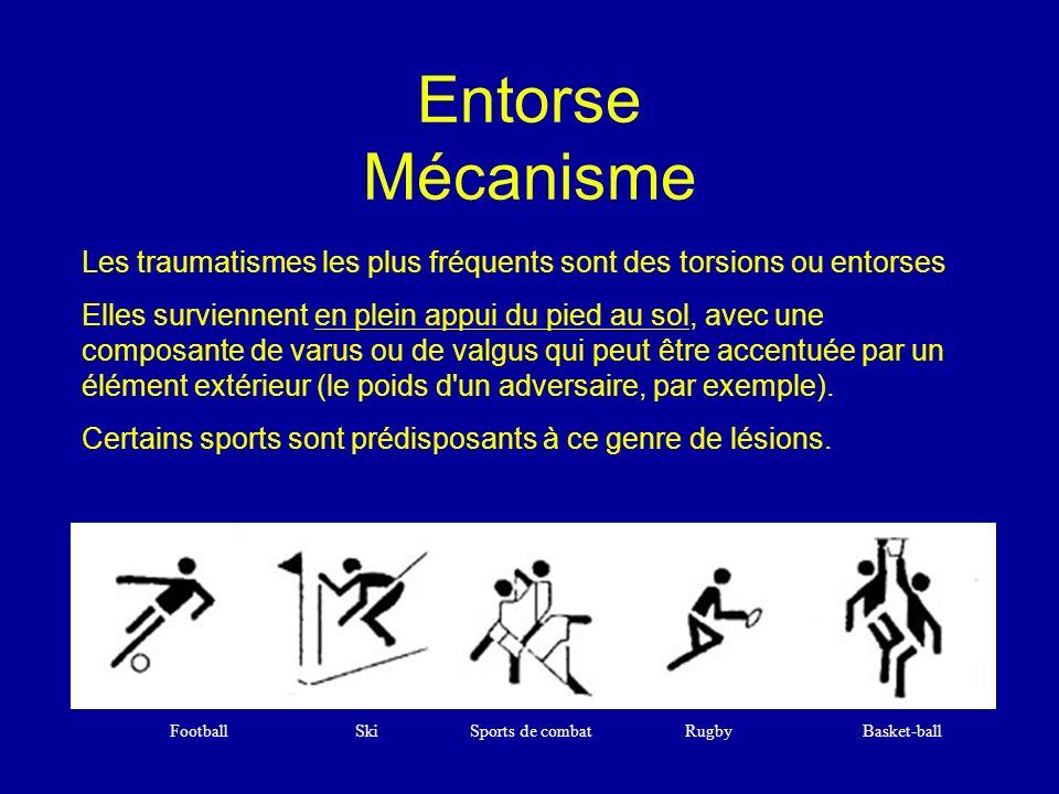 Entorse Mécanisme Les traumatismes les plus fréquents sont des torsions ou entorses.