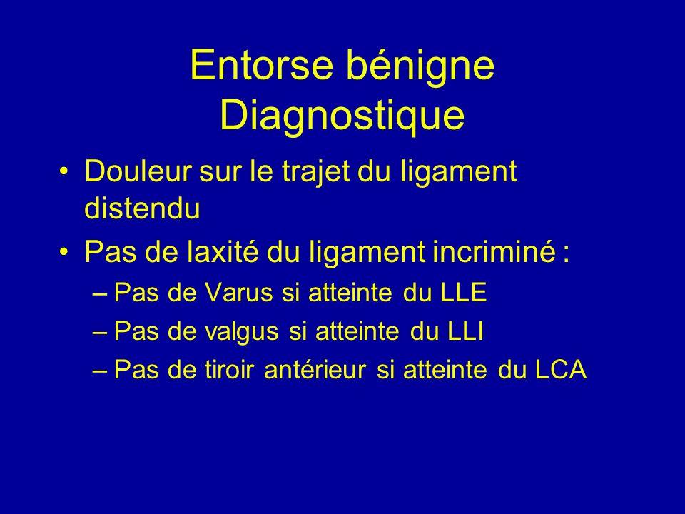 Entorse bénigne Diagnostique