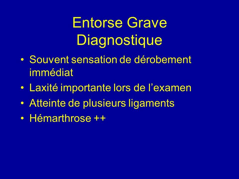 Entorse Grave Diagnostique