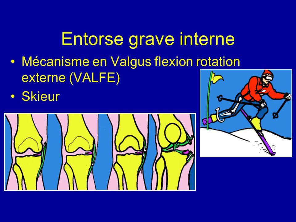 Entorse grave interne Mécanisme en Valgus flexion rotation externe (VALFE) Skieur