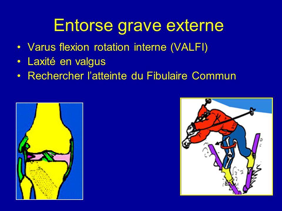 Entorse grave externe Varus flexion rotation interne (VALFI)