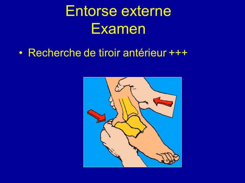 Entorse externe Examen