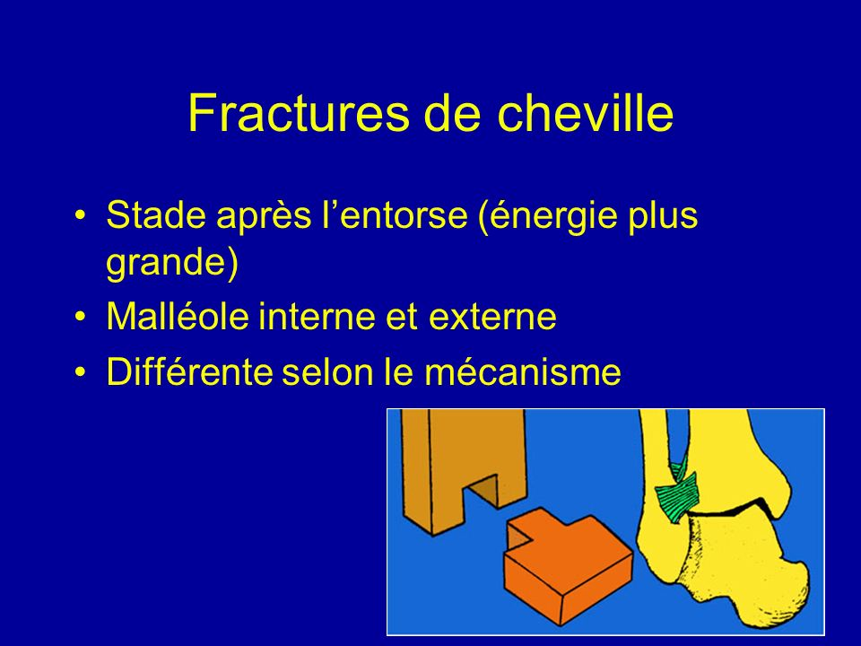 Fractures de cheville Stade après l'entorse (énergie plus grande)