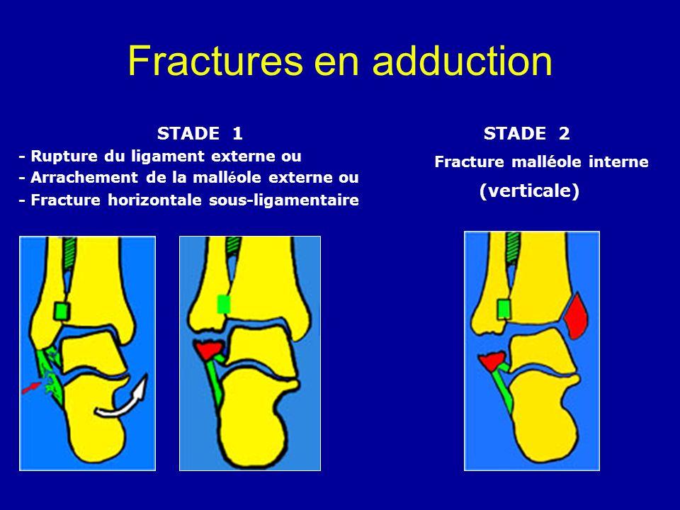 Fractures en adduction