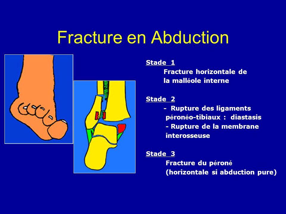 Fracture en Abduction Stade 1 Fracture horizontale de