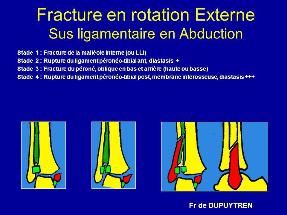 Fracture en rotation Externe Sus ligamentaire en Abduction