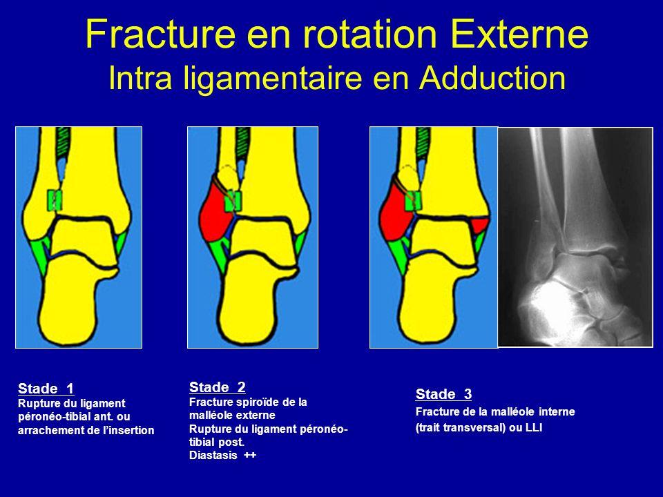 Fracture en rotation Externe Intra ligamentaire en Adduction