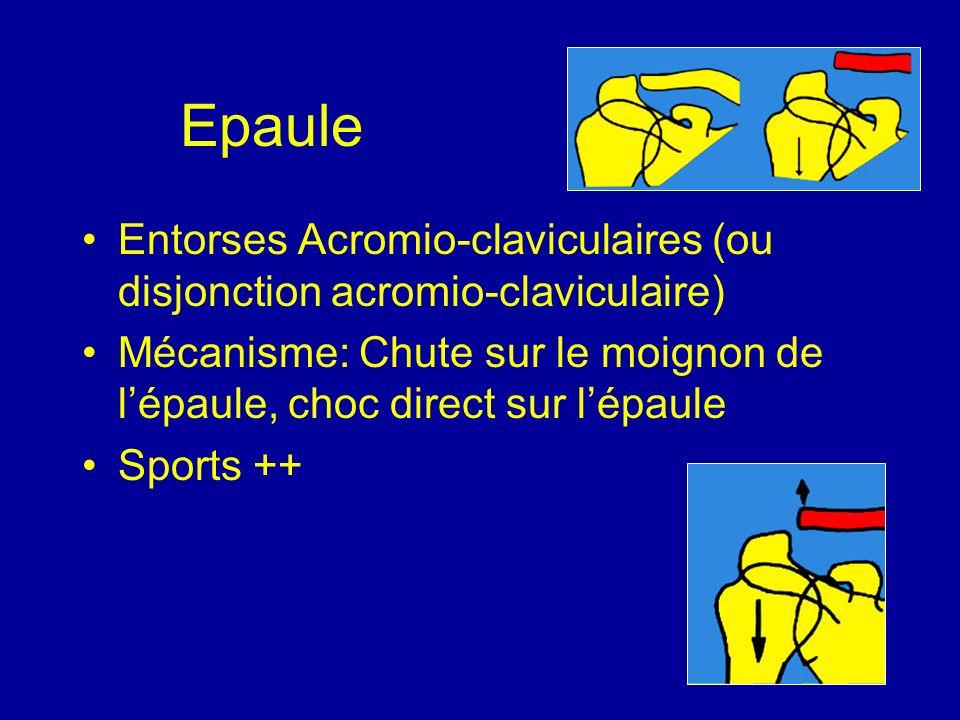 Epaule Entorses Acromio-claviculaires (ou disjonction acromio-claviculaire) Mécanisme: Chute sur le moignon de l'épaule, choc direct sur l'épaule.