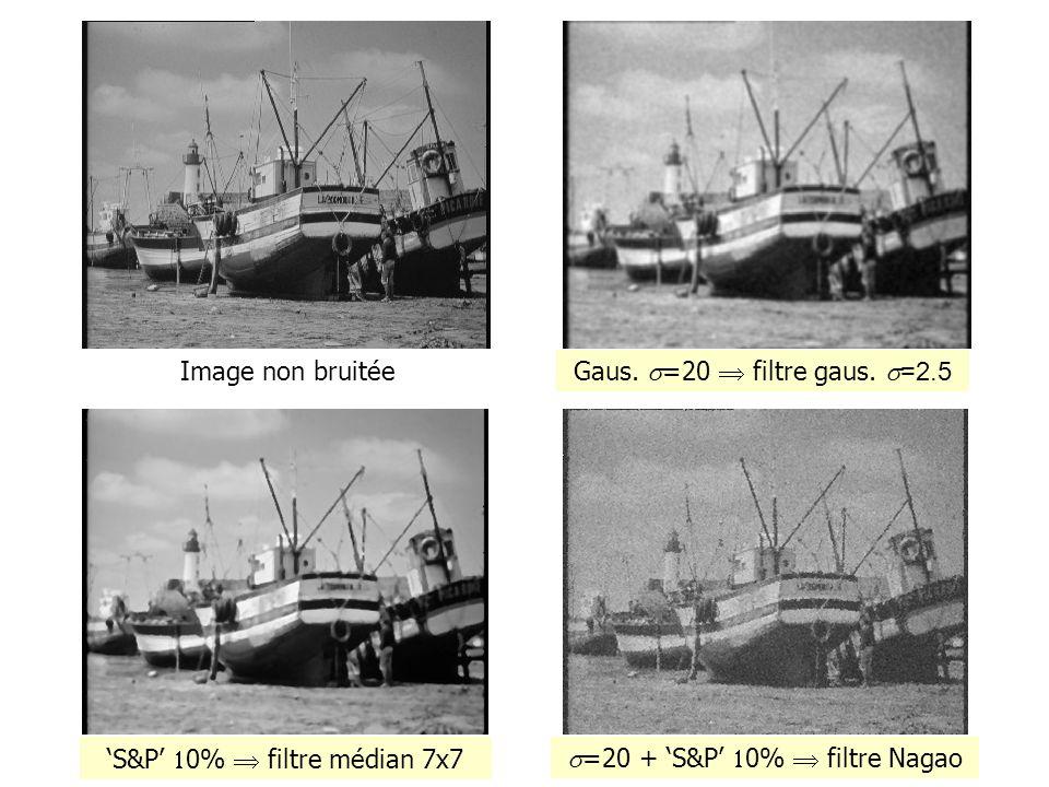 'S&P' 10%  filtre médian 7x7 s=20 + 'S&P' 10%  filtre Nagao