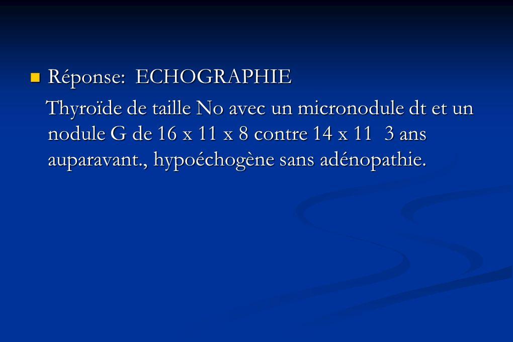 Réponse: ECHOGRAPHIE