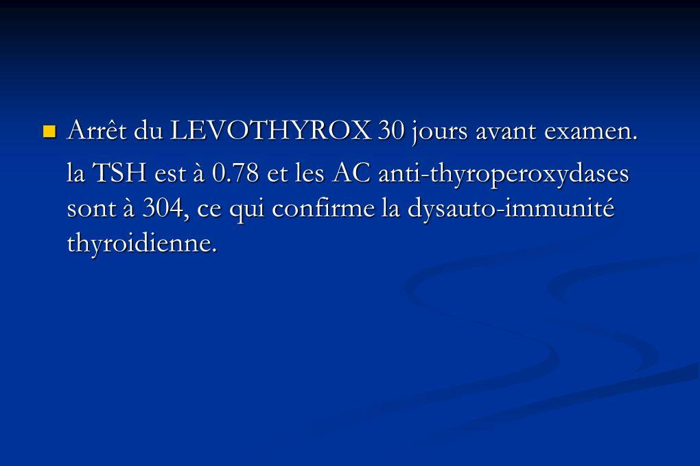 Arrêt du LEVOTHYROX 30 jours avant examen.