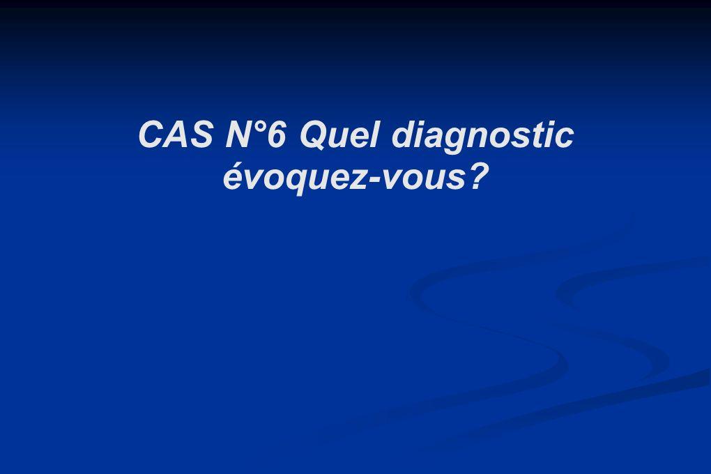 CAS N°6 Quel diagnostic évoquez-vous