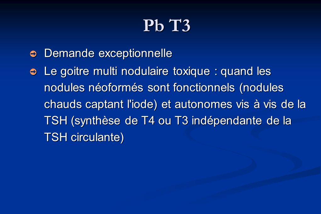 Pb T3 Demande exceptionnelle