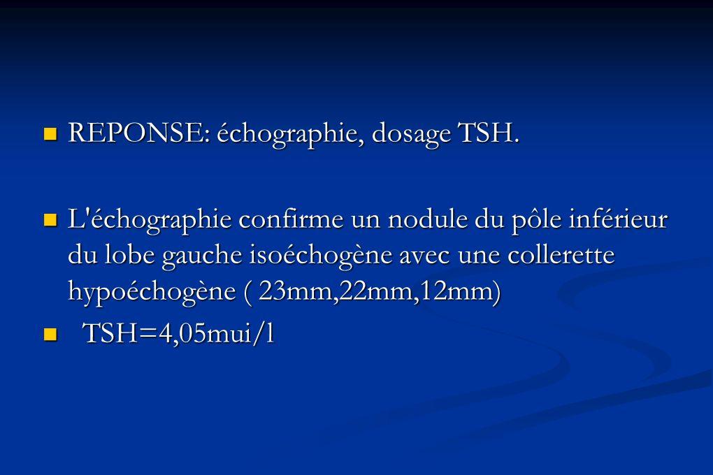 REPONSE: échographie, dosage TSH.
