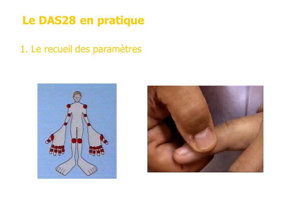 Le DAS28 en pratique 1. Le recueil des paramètres