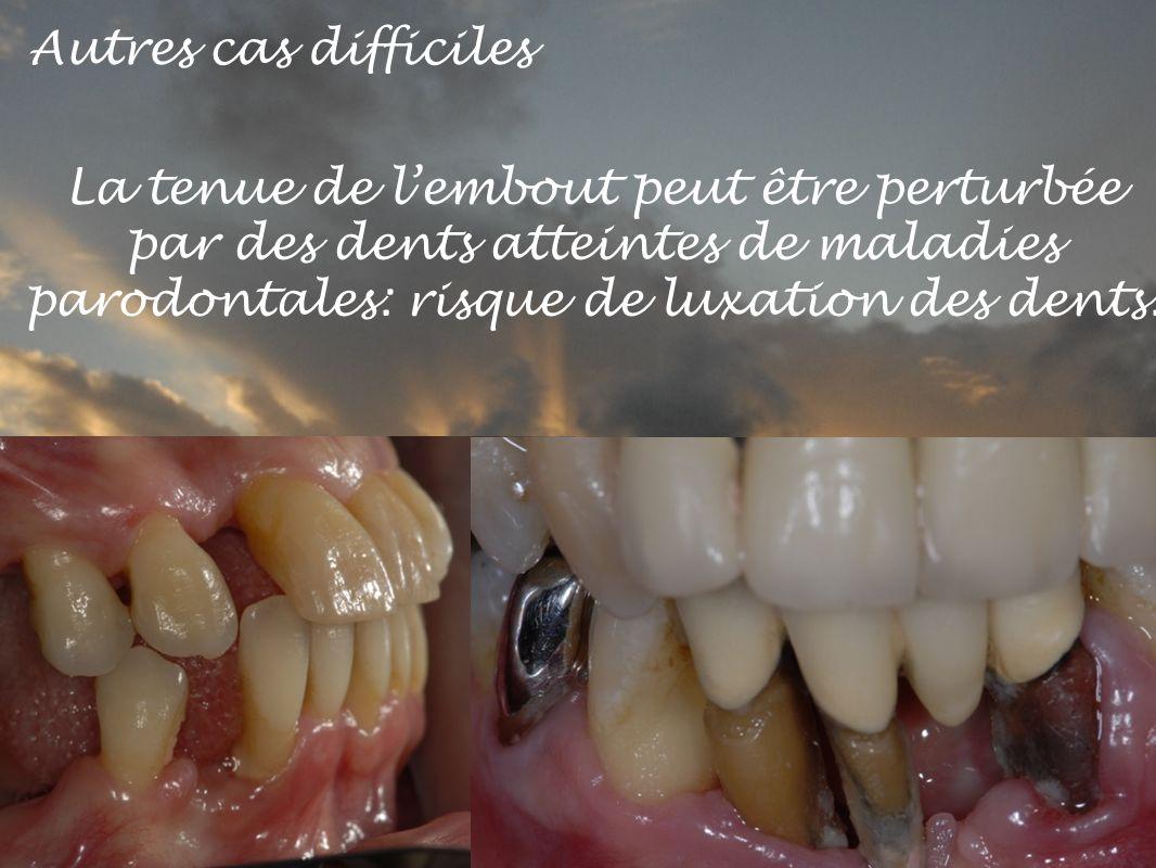 Autres cas difficiles La tenue de l'embout peut être perturbée par des dents atteintes de maladies parodontales: risque de luxation des dents.
