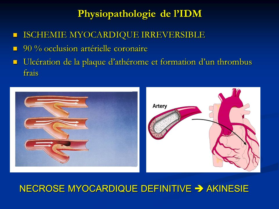 Physiopathologie de l'IDM
