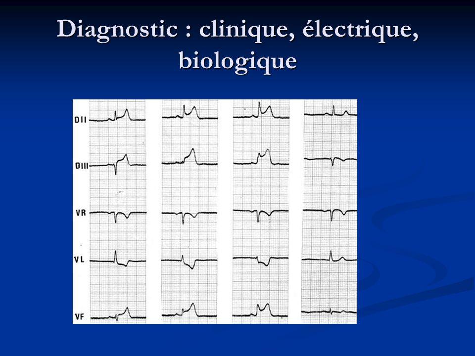 Diagnostic : clinique, électrique, biologique