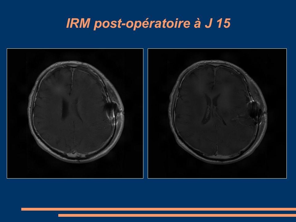 IRM post-opératoire à J 15
