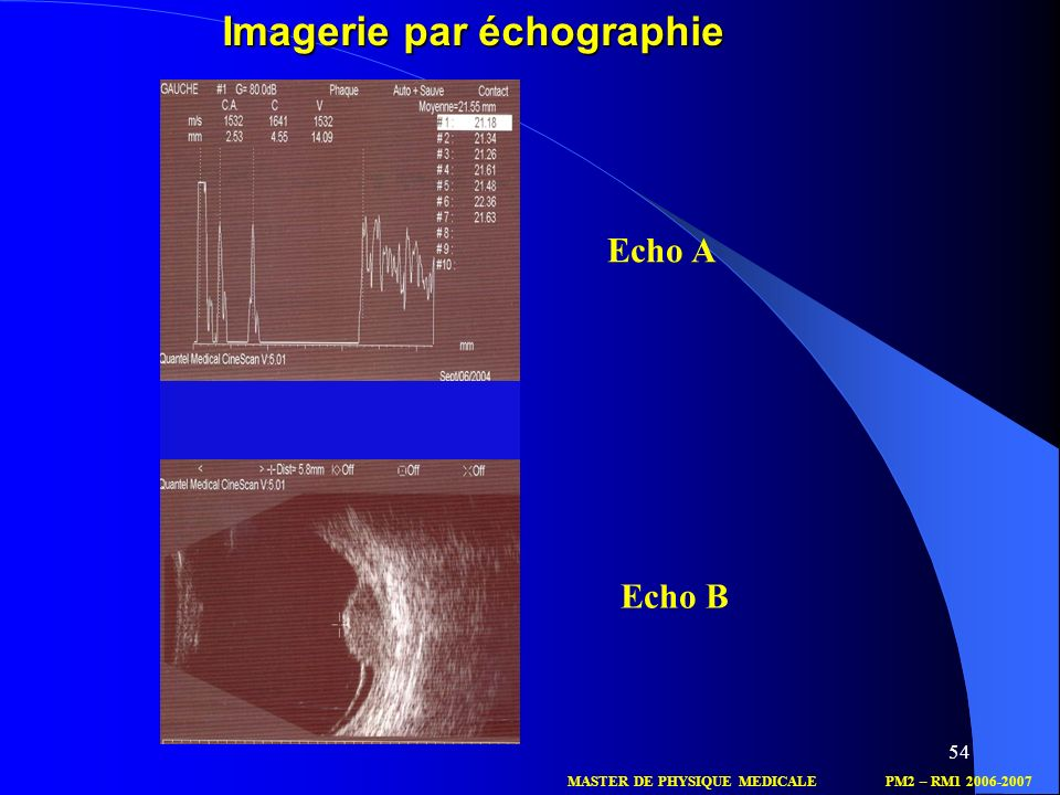 Imagerie par échographie