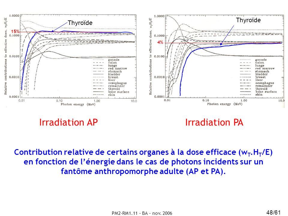 Irradiation AP Irradiation PA