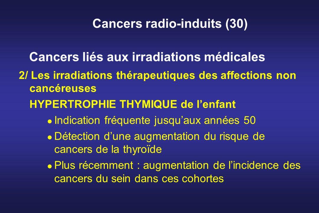 Cancers radio-induits (30)