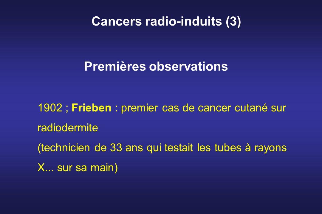 Cancers radio-induits (3)
