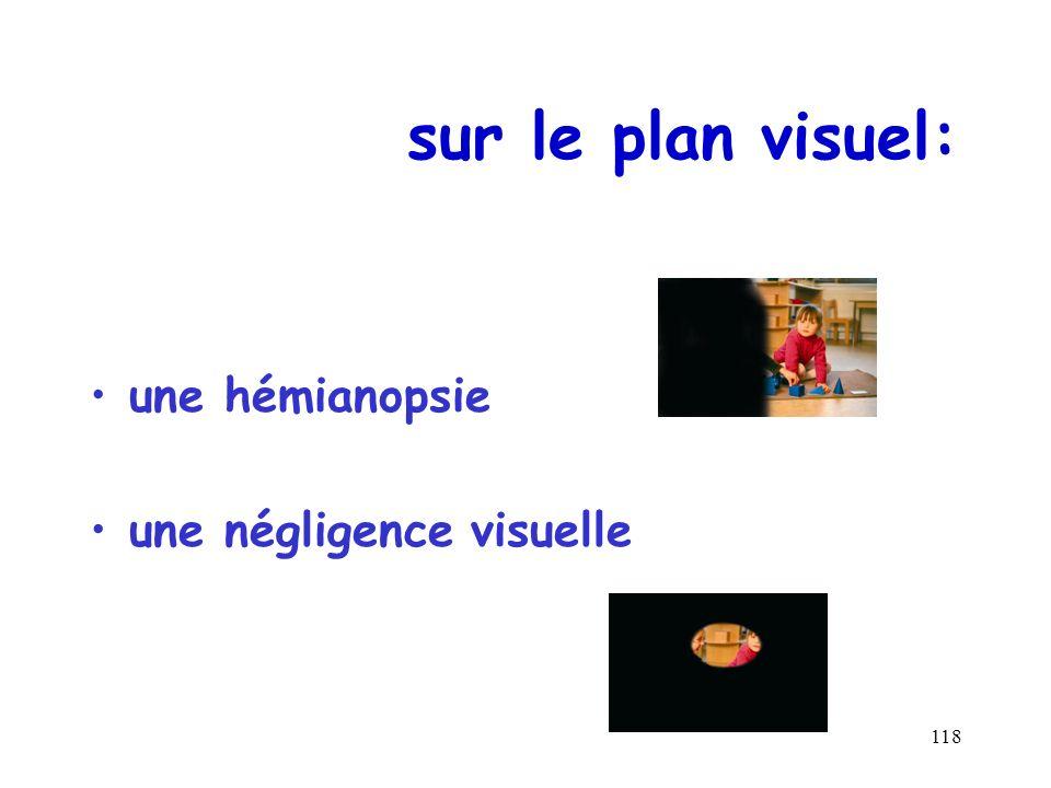 sur le plan visuel: une hémianopsie une négligence visuelle